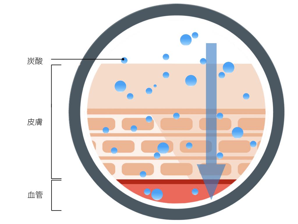 炭酸の経費吸収の画像